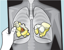 What is popcorn lung?